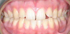 Orthdontics